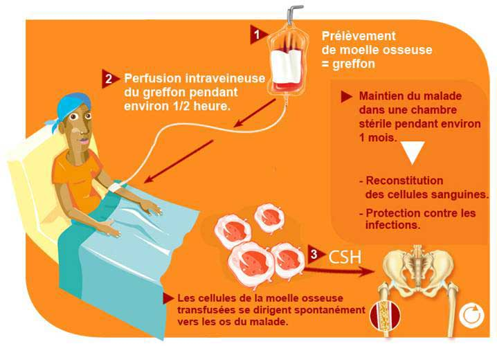 transfusion de plaquettes sanguines